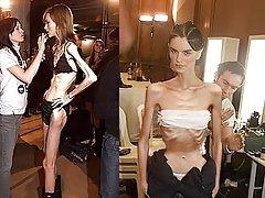 Biluzik anorexic nesken argazkiak